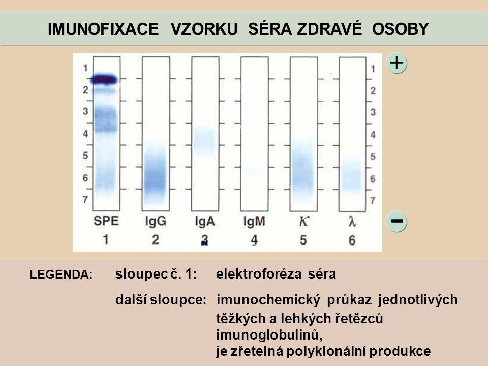 - + IMUNOFIXACE VZORKU SÉRA ZDRAVÉ OSOBY LEGENDA: sloupec č. 1: elektroforéza séra další sloupce: imunochemický průkaz jednotlivých těžkých a lehkých