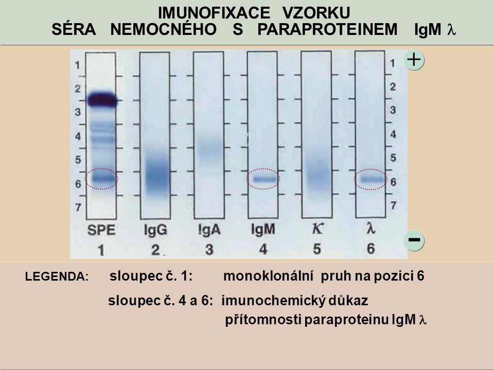 - + IMUNOFIXACE VZORKU SÉRA NEMOCNÉHO S PARAPROTEINEM IgM LEGENDA: sloupec č. 1: monoklonální pruh na pozici 6 sloupec č. 4 a 6: imunochemický důkaz p