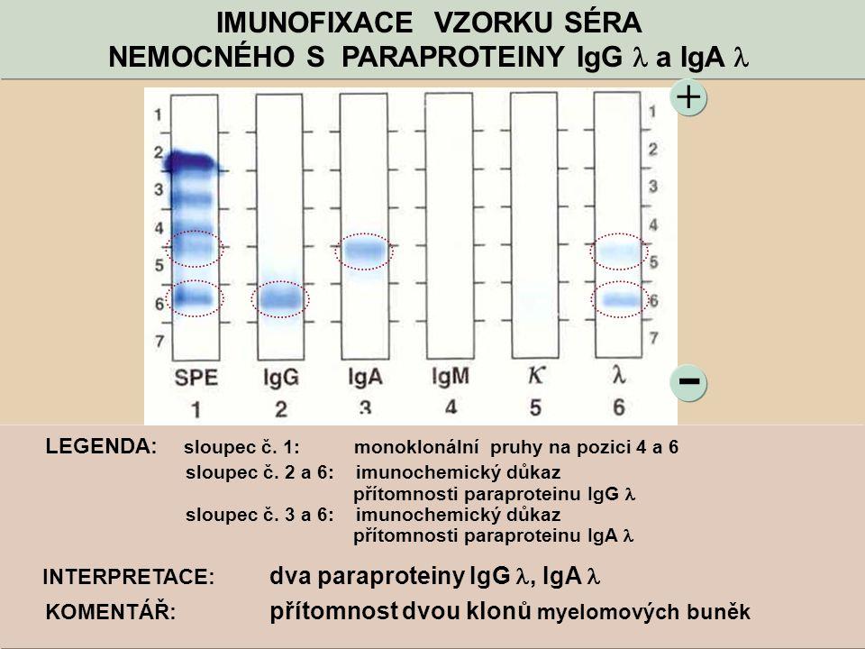 - + IMUNOFIXACE VZORKU SÉRA NEMOCNÉHO S PARAPROTEINY IgG a IgA LEGENDA: sloupec č. 1: monoklonální pruhy na pozici 4 a 6 sloupec č. 2 a 6: imunochemic