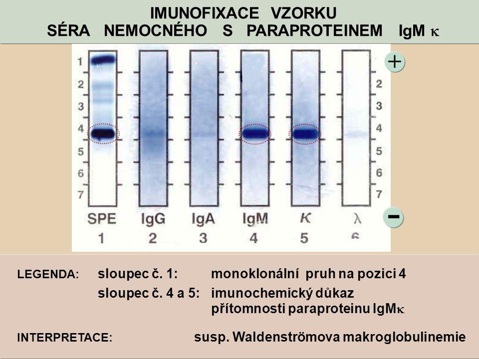 - + IMUNOFIXACE VZORKU SÉRA NEMOCNÉHO S PARAPROTEINEM IgM  LEGENDA: sloupec č. 1: monoklonální pruh na pozici 4 sloupec č. 4 a 5: imunochemický důkaz