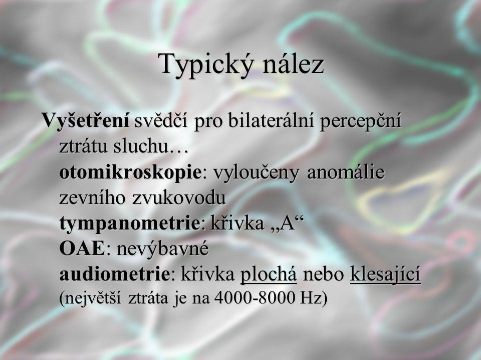 """Typický nález Vyšetření svědčí pro bilaterální percepční ztrátu sluchu… otomikroskopie: vyloučeny anomálie zevního zvukovodu tympanometrie: křivka """"A"""""""