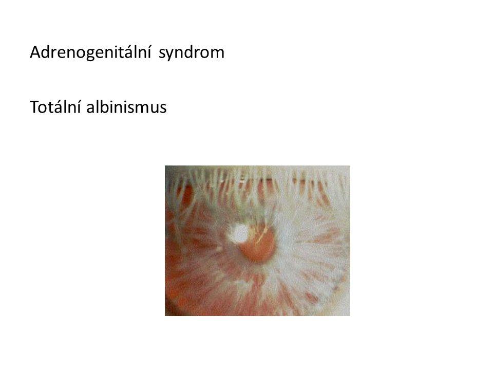 Adrenogenitální syndrom Totální albinismus