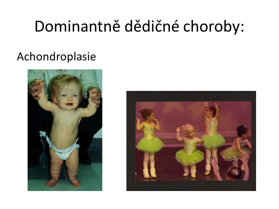 Dominantně dědičné choroby: Achondroplasie