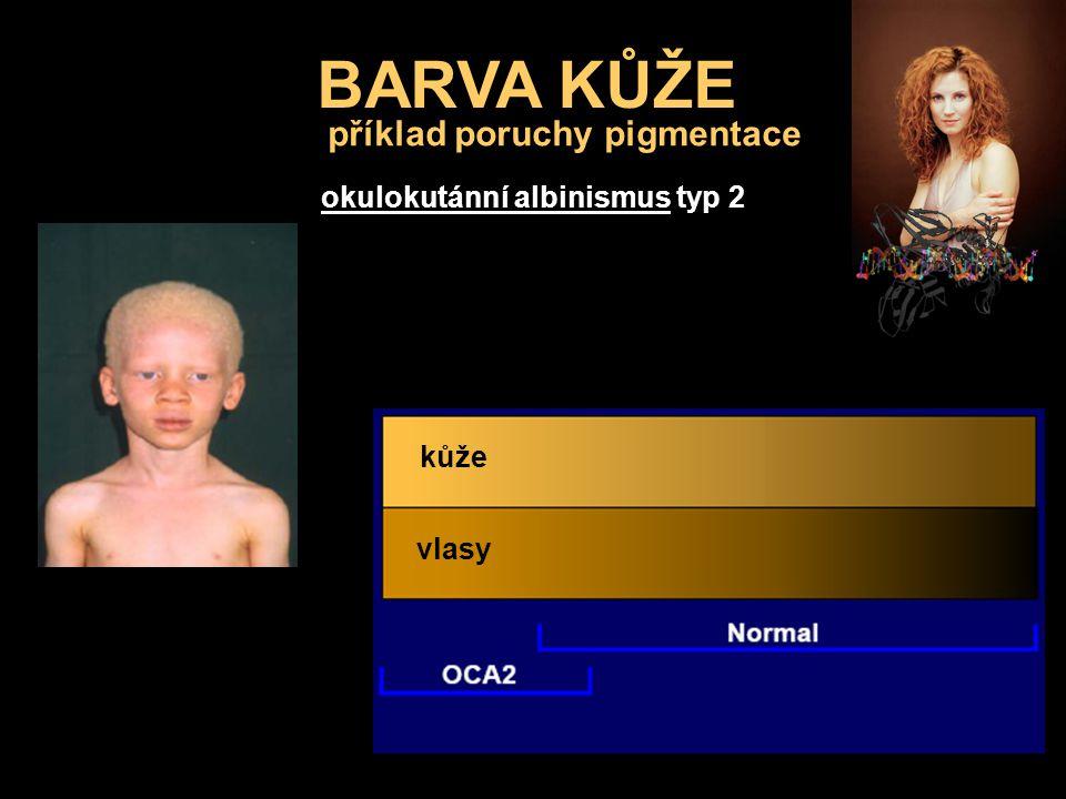 BARVA KŮŽE okulokutánní albinismus typ 2 vlasy kůže příklad poruchy pigmentace