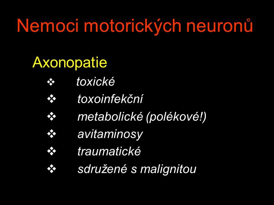 Nemoci motorických neuronů Axonopatie v toxické v toxoinfekční v metabolické (polékové!) v avitaminosy v traumatické v sdružené s malignitou
