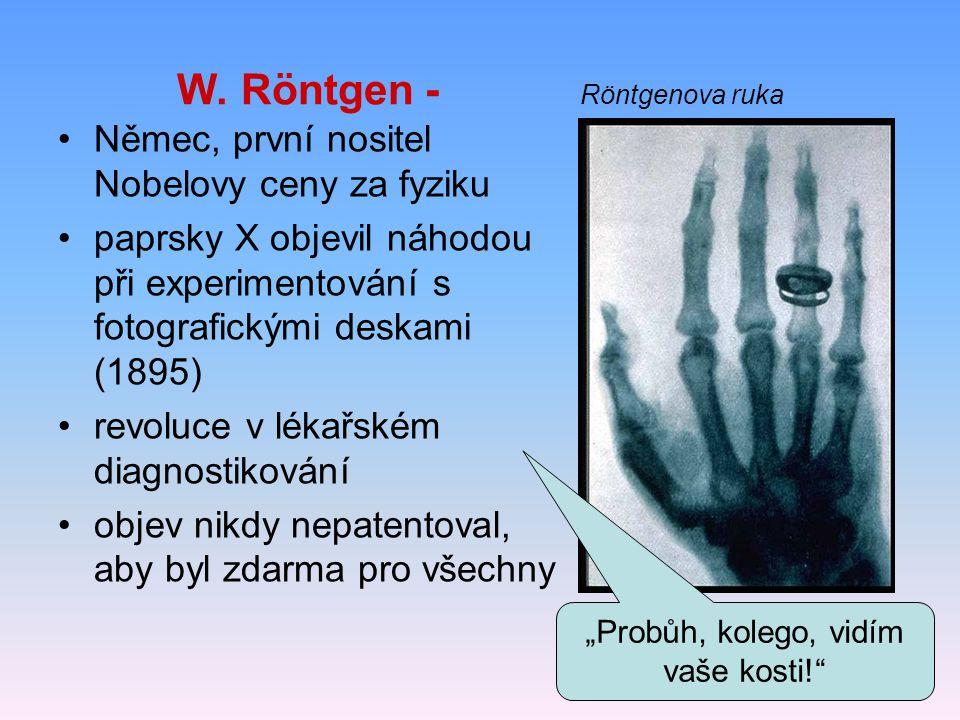 W. Röntgen - Röntgenova ruka Němec, první nositel Nobelovy ceny za fyziku paprsky X objevil náhodou při experimentování s fotografickými deskami (1895