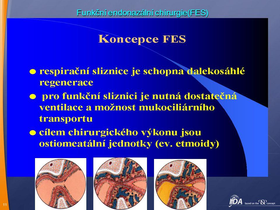 11 Funkční endonazální chirurgie(FES)