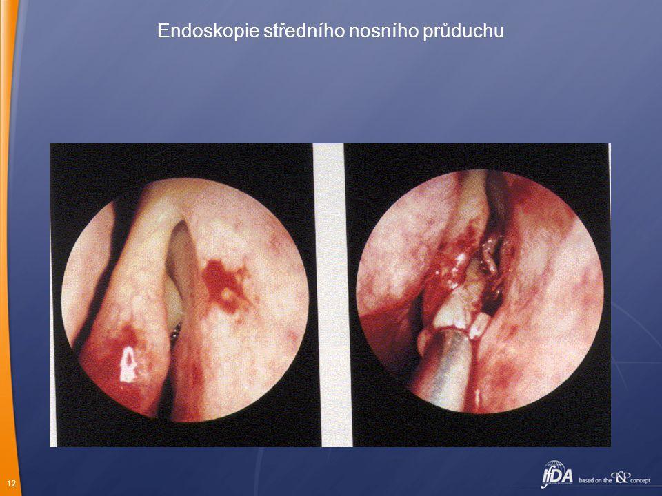 12 Endoskopie středního nosního průduchu
