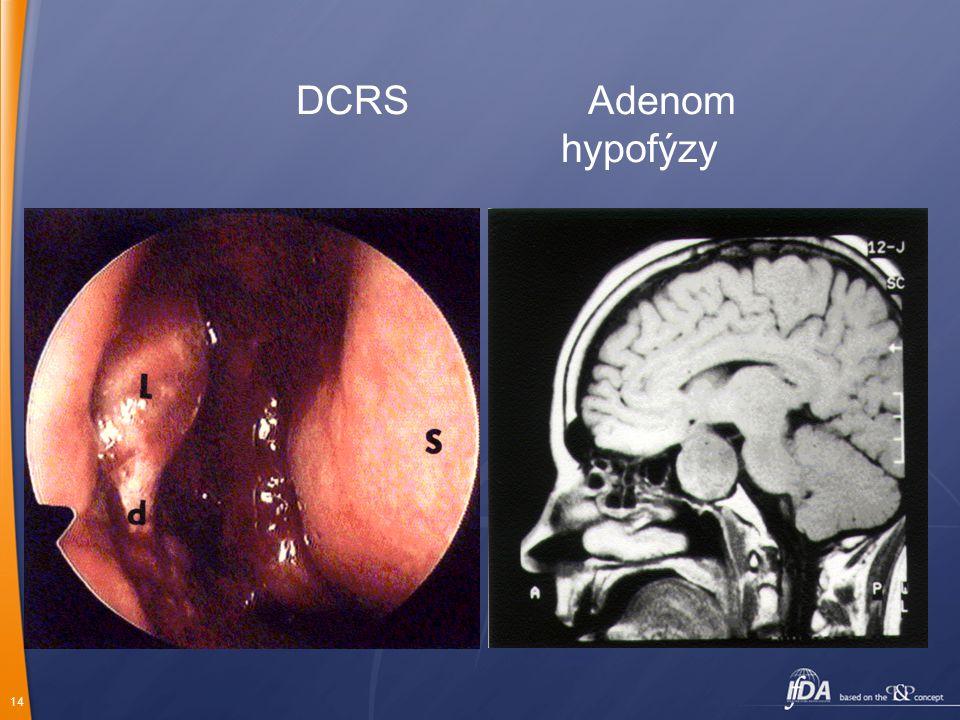 14 DCRS Adenom hypofýzy