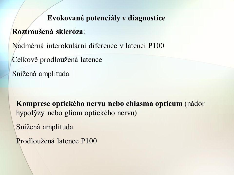 Roztroušená skleróza: Nadměrná interokulární diference v latenci P100 Celkově prodloužená latence Snížená amplituda Komprese optického nervu nebo chia