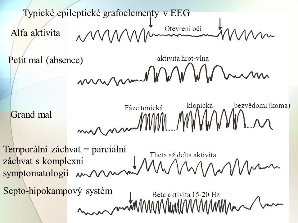 Typické epileptické grafoelementy v EEG Petit mal (absence) Grand mal Fáze tonická klonickábezvědomí (koma) Temporální záchvat = parciální záchvat s k
