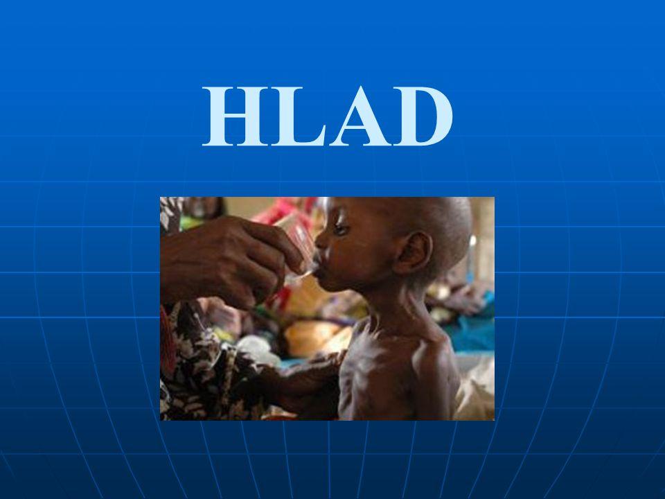 Zároveň OSN přiznává, že hladomor nemusel být tak tragický, kdyby se do země dostala pomoc hned při prvotních známkách problémů.