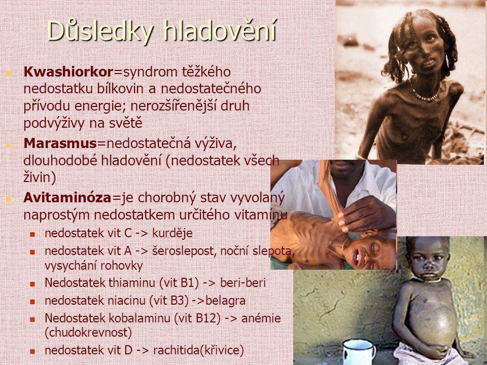 Důsledky hladovění Kwashiorkor=syndrom těžkého nedostatku bílkovin a nedostatečného přívodu energie; nerozšířenější druh podvýživy na světě Marasmus=n