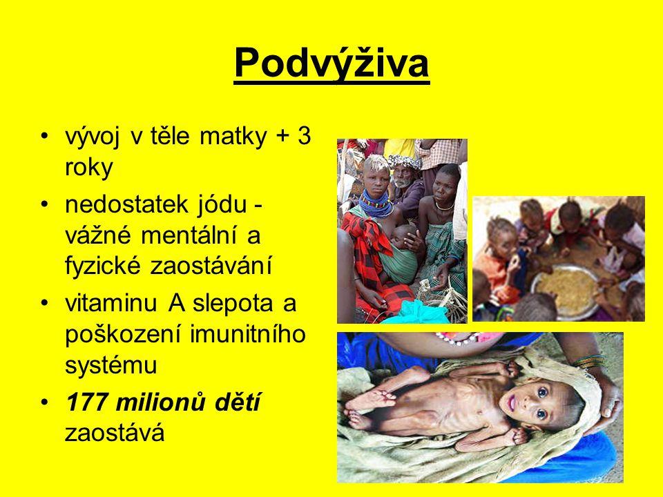 Podvýživa vývoj v těle matky + 3 roky nedostatek jódu - vážné mentální a fyzické zaostávání vitaminu A slepota a poškození imunitního systému 177 milionů dětí zaostává