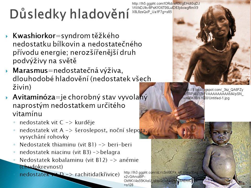  Kwashiorkor=syndrom těžkého nedostatku bílkovin a nedostatečného přívodu energie; nerozšířenější druh podvýživy na světě  Marasmus=nedostatečná výž