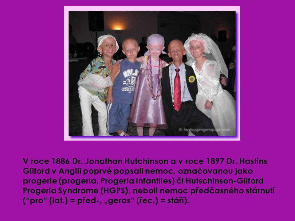 Progerie je vzácná nemoc (v současnosti žije přibližně 40 takto nemocných dětí), charakterizována zrychleným růstem v dětském věku.