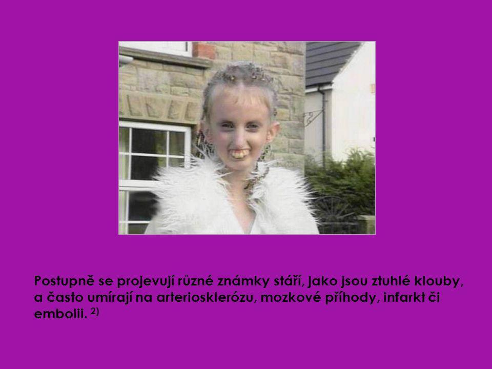 V květnu 2004 bylo zjištěno, že příčinou progerie na fyzickém těle je zmutovaná forma genu LMNA (čteno Lamin A).
