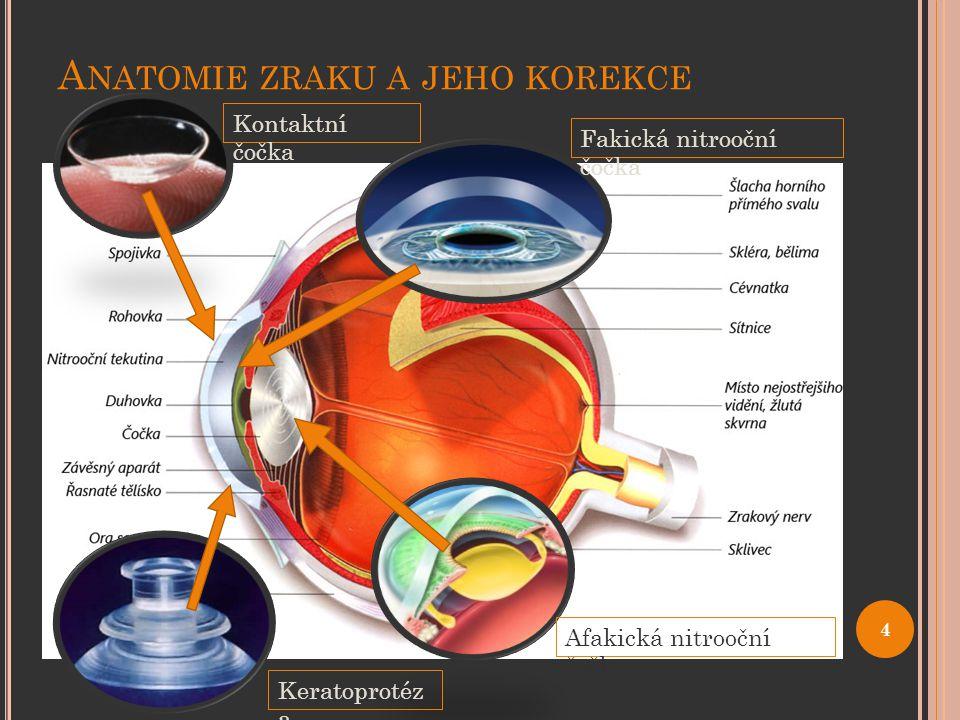 """O ČNÍ CHOROBY Astigmatismus Vidění na většinu vzdáleností neostré Chybné zakřivení nebo zdeformování rohovky Korekce – brýlemi s cylindrickými skly nebo torickými čočkami Krátkozrakost (myopie) Vidění na dálku rozmazané Oční bulva je dlouhá Korekce – laser, sférické kontaktní čočky, brýle (rozptylky, """"mínus ) Dalekozrakost (hypermetropie) Vidění na blízko rozmazané Oční bulva je zkrácená Korekce – laser, sférické kontaktní čočky, brýle (spojky, """"plus ) 5"""