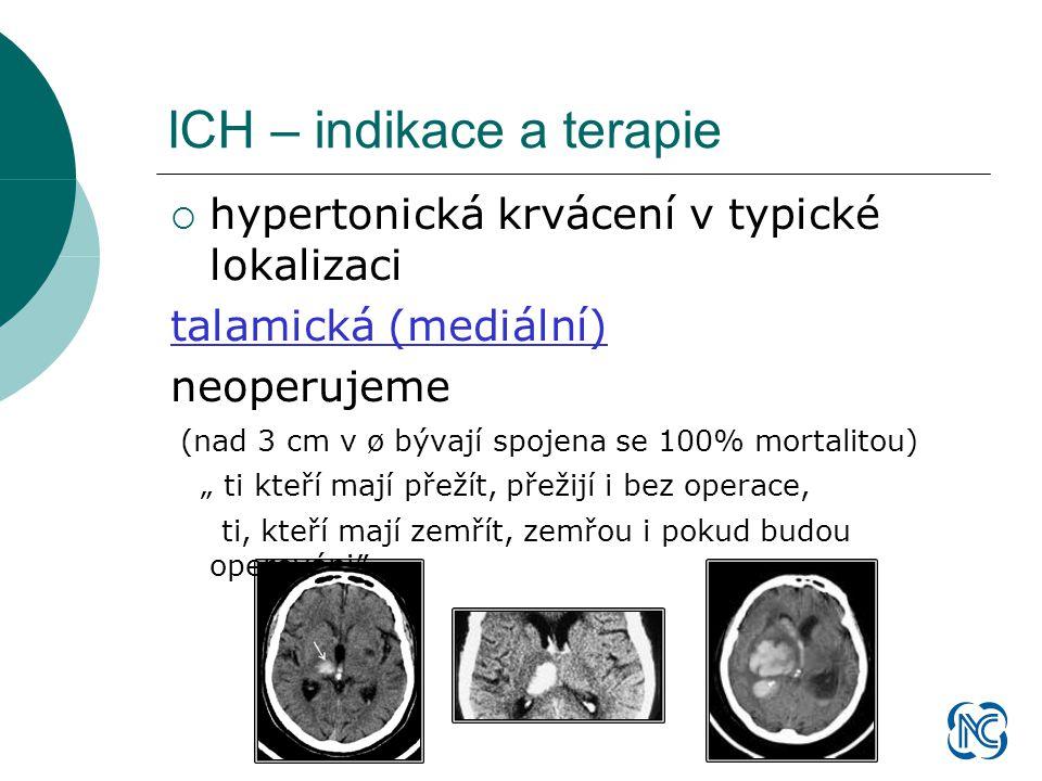 """ hypertonická krvácení v typické lokalizaci talamická (mediální) neoperujeme (nad 3 cm v ø bývají spojena se 100% mortalitou) """" ti kteří mají přežít, přežijí i bez operace, ti, kteří mají zemřít, zemřou i pokud budou operováni″"""