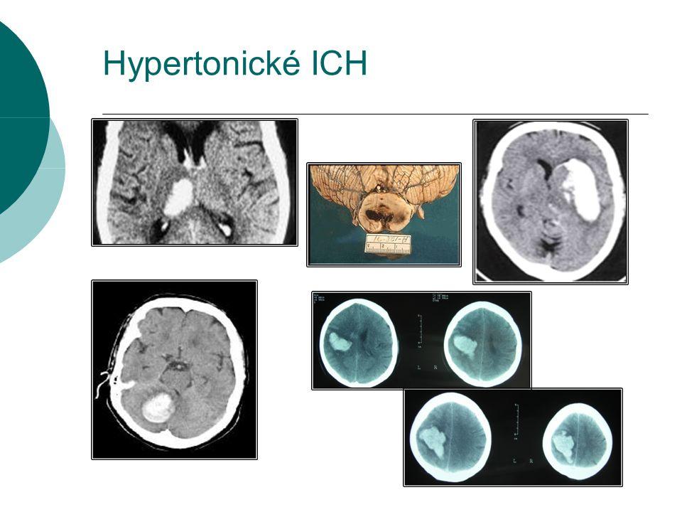 Hypertonické ICH