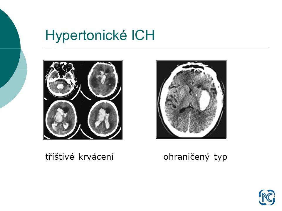 Šíření typického krvácení Beneš V.: Mozková krvácení hypertoniků a jejich chirurgická léčba (Avicenum 1983)