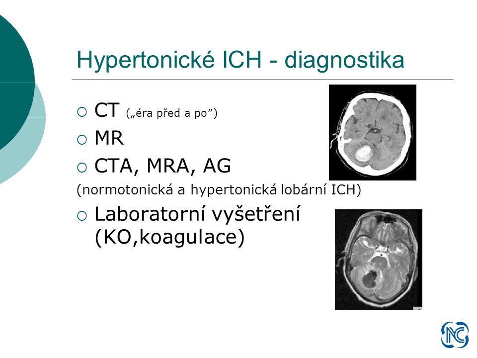 """Hypertonické ICH - diagnostika  CT (""""éra před a po″)  MR  CTA, MRA, AG (normotonická a hypertonická lobární ICH)  Laboratorní vyšetření (KO,koagulace)"""