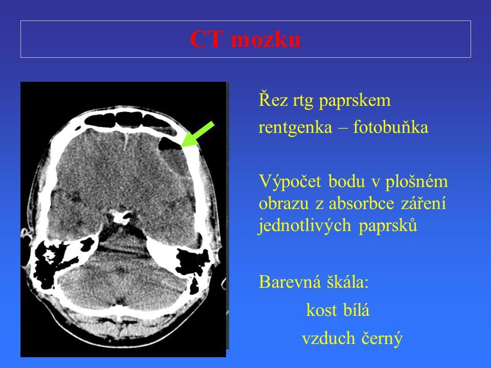CT mozku Řez rtg paprskem rentgenka – fotobuňka V ýpo č et bodu v plošném obrazu z absorbce zá ř ení jednotlivých paprsk ů Barevná škála: kost bílá vz
