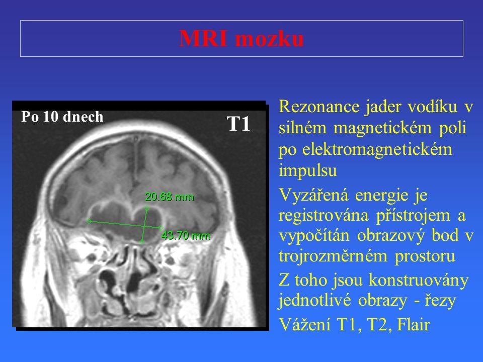 T2 T1 FLAIR T1T2 T1 Po 10 dnech MRI mozku Rezonance jader vodíku v silném magnetickém poli po elektromagnetickém impulsu V yzá ř ená e nergie je regis