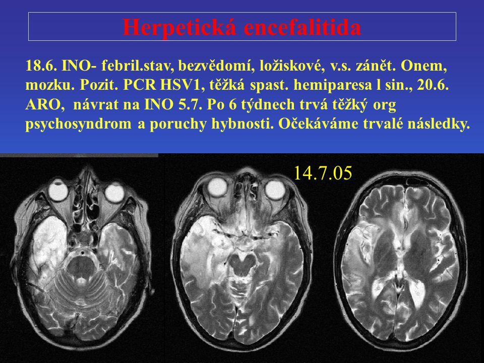 Herpetická encefalitida 18.6. INO- febril.stav, bezvědomí, ložiskové, v.s. zánět. Onem, mozku. Pozit. PCR HSV1, těžká spast. hemiparesa l sin., 20.6.