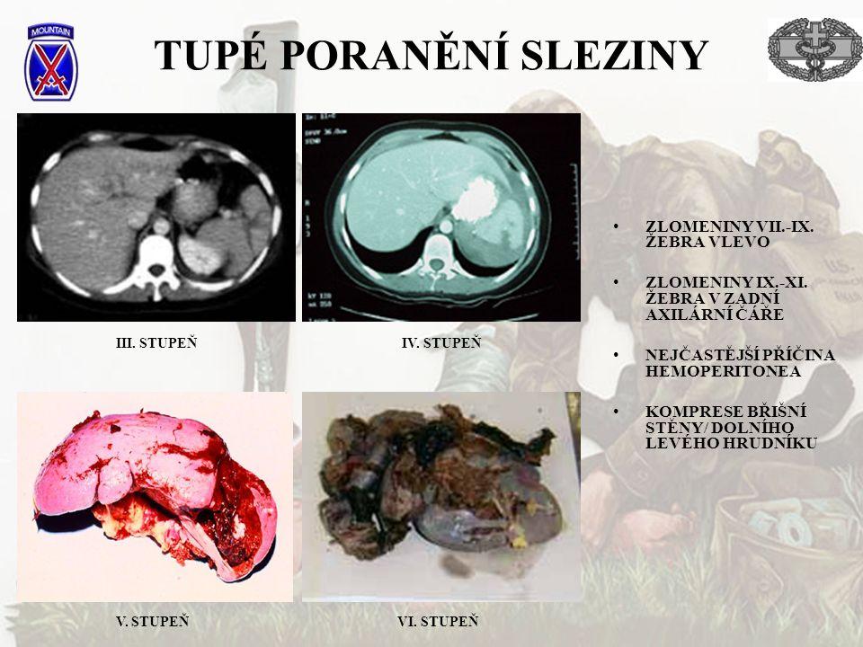 TUPÉ PORANĚNÍ SLEZINY ZLOMENINY VII.-IX.ŽEBRA VLEVO ZLOMENINY IX.-XI.