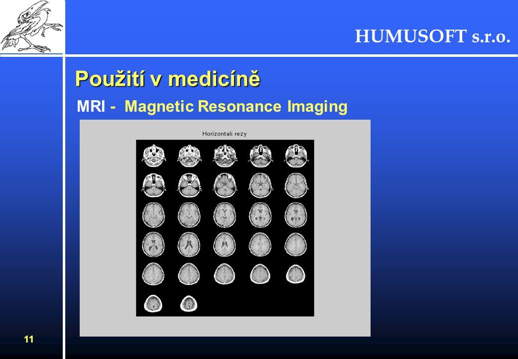 HUMUSOFT s.r.o. 11 Použití v medicíně MRI - Magnetic Resonance Imaging