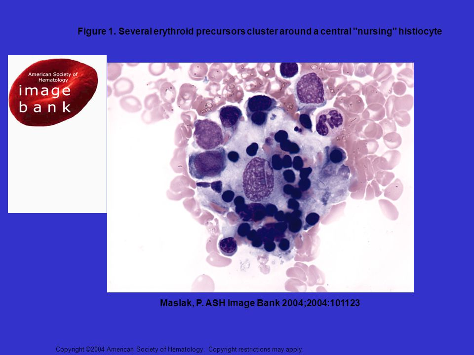 Copyright ©2004 American Society of Hematology. Copyright restrictions may apply. Maslak, P. ASH Image Bank 2004;2004:101123 Figure 1. Several erythro