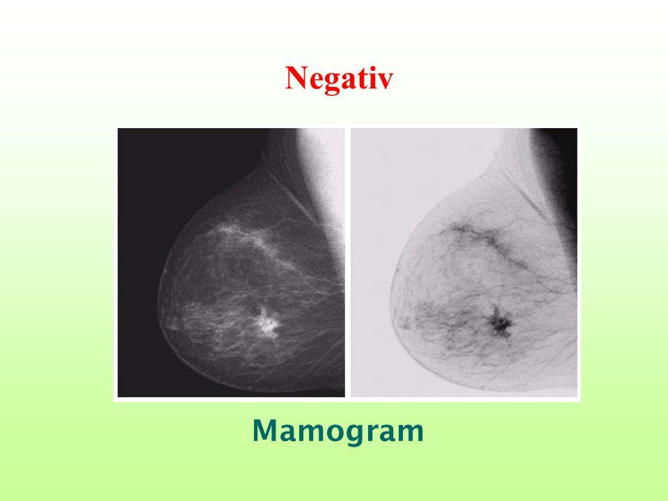 Negativ Mamogram