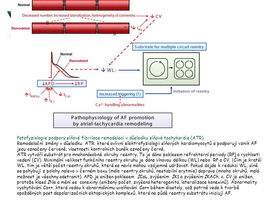 Patofyziologie podpory síňové fibrilace remodelací v důsledku síňové tachykardie (ATR) Remodelační změny v důsledku ATR, které ovlivní elektrofyziolog