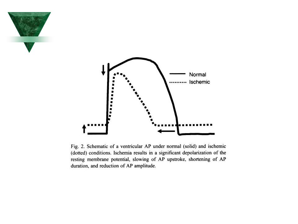 Ilustrace procesu, který přispívá k redukci proudu Ca++ typu L u síňové fibrilace (AF)  Změny vyplývající z AF vyznačeny červeně.