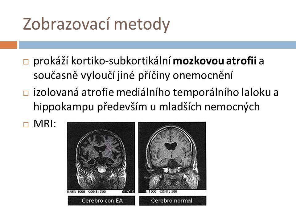 Zobrazovací metody  prokáží kortiko-subkortikální mozkovou atrofii a současně vyloučí jiné příčiny onemocnění  izolovaná atrofie mediálního temporál