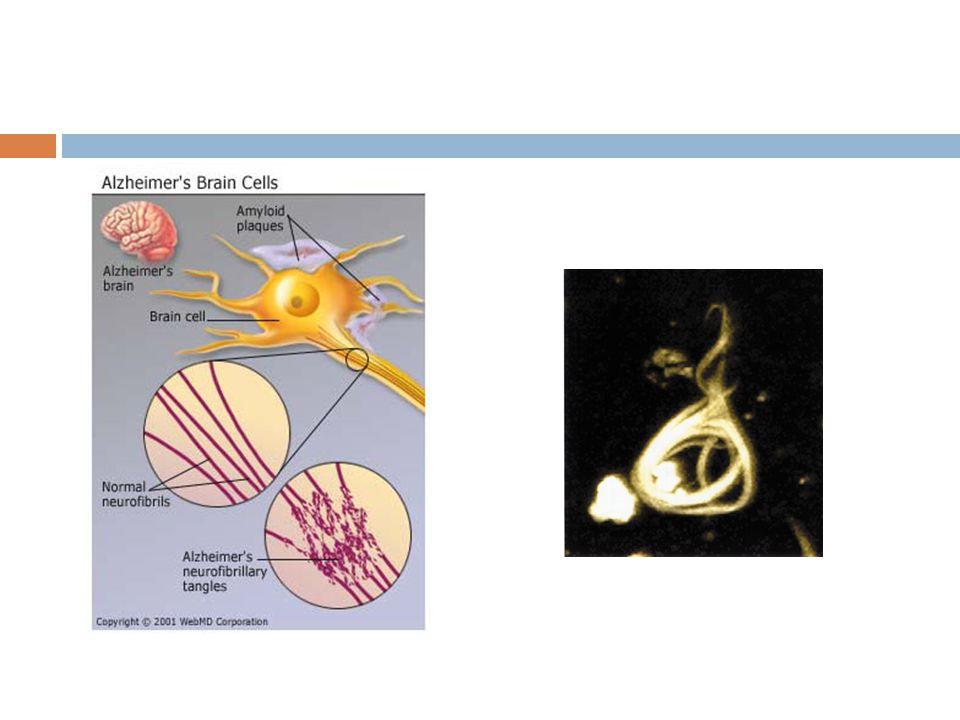 Terapie-farmakologická  Inhibitory acetylcholinesterázy – rivastigmin, galantamin, donepezil  Memantin - nekompetitivní antagosnista NMDA (N-Metyl-D-Apartátových) receptorů  Deprese – antidepresiva 2.