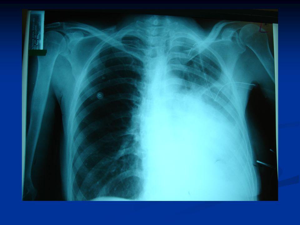 """Klinický obraz: Klinický obraz: Neklid, dyspnoe, cyanóza, přeplněné krční žíly, inspirační postavení hrudníku, zmenšení rozsahu dýchacích pohybů, hypotenze Neklid, dyspnoe, cyanóza, přeplněné krční žíly, inspirační postavení hrudníku, zmenšení rozsahu dýchacích pohybů, hypotenze Na postižené straně oslabené až vymizelé dýchání, """"škatulový poklep, na RTG vymizelá plicní kresba, deviace trachey Na postižené straně oslabené až vymizelé dýchání, """"škatulový poklep, na RTG vymizelá plicní kresba, deviace trachey Častý je podkožní emfyzém – třaskání Častý je podkožní emfyzém – třaskání"""