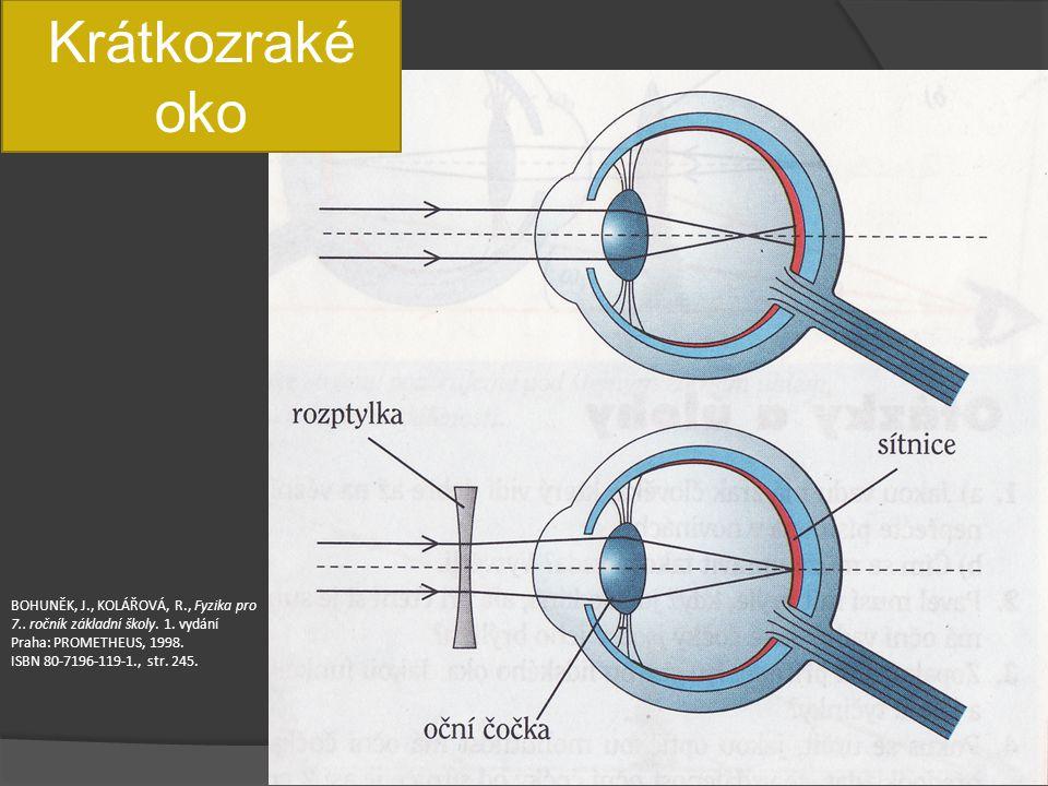 Krátkozraké oko BOHUNĚK, J., KOLÁŘOVÁ, R., Fyzika pro 7.. ročník základní školy. 1. vydání Praha: PROMETHEUS, 1998. ISBN 80-7196-119-1., str. 245.