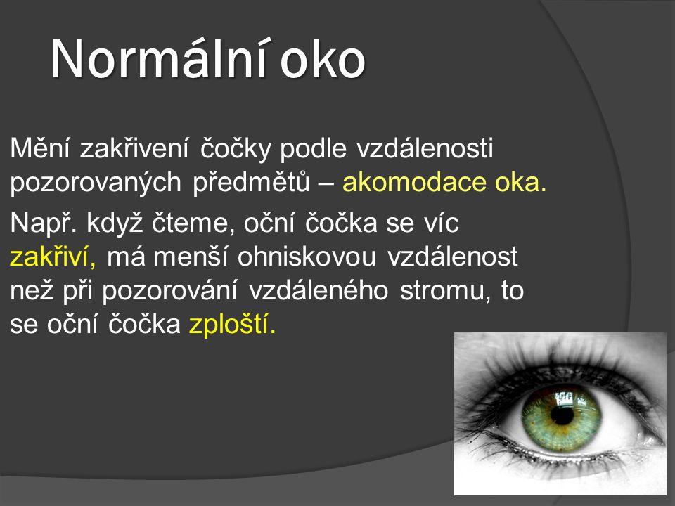 Normální oko Mění zakřivení čočky podle vzdálenosti pozorovaných předmětů – akomodace oka. Např. když čteme, oční čočka se víc zakřiví, má menší ohnis