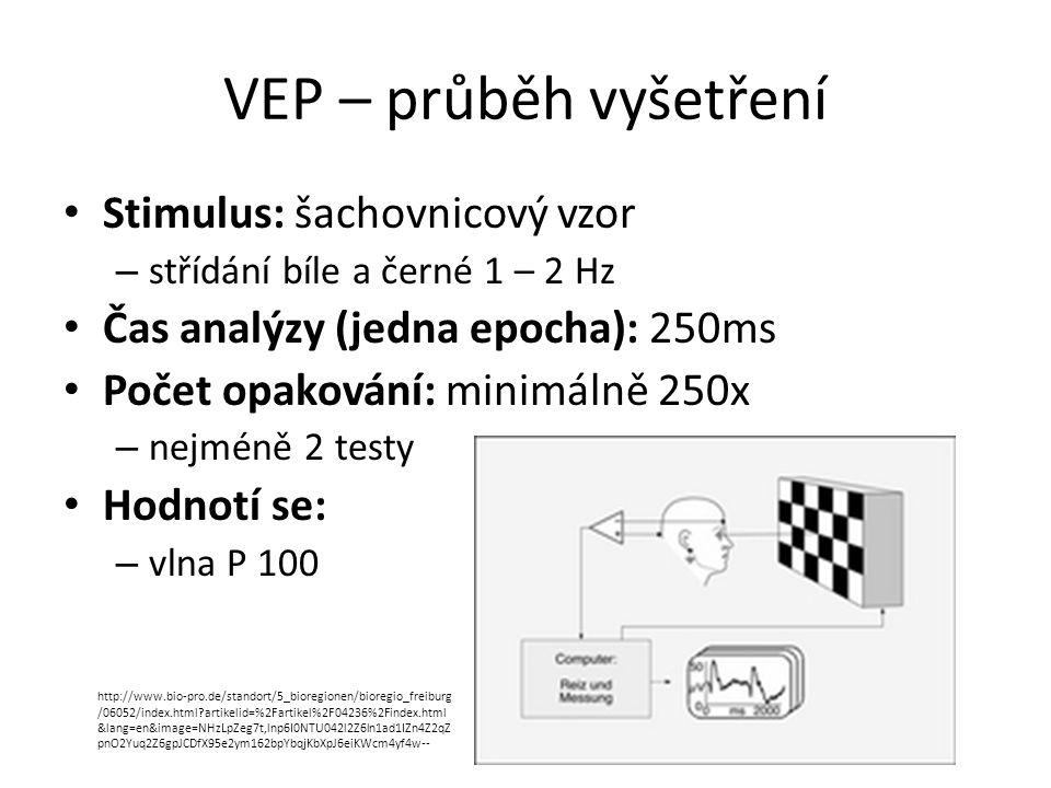 VEP – průběh vyšetření Stimulus: šachovnicový vzor – střídání bíle a černé 1 – 2 Hz Čas analýzy (jedna epocha): 250ms Počet opakování: minimálně 250x
