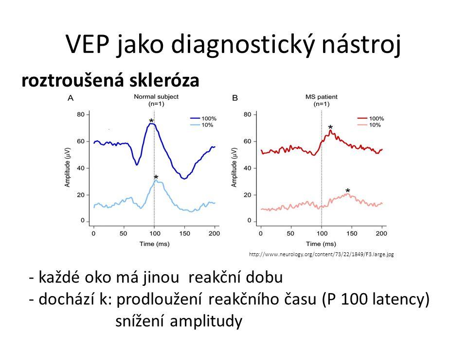 VEP jako diagnostický nástroj roztroušená skleróza http://www.neurology.org/content/73/22/1849/F3.large.jpg - každé oko má jinou reakční dobu - docház