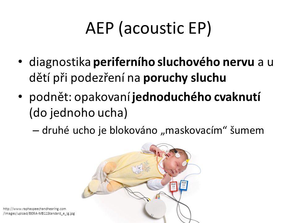 AEP (acoustic EP) diagnostika periferního sluchového nervu a u dětí při podezření na poruchy sluchu podnět: opakovaní jednoduchého cvaknutí (do jednoh