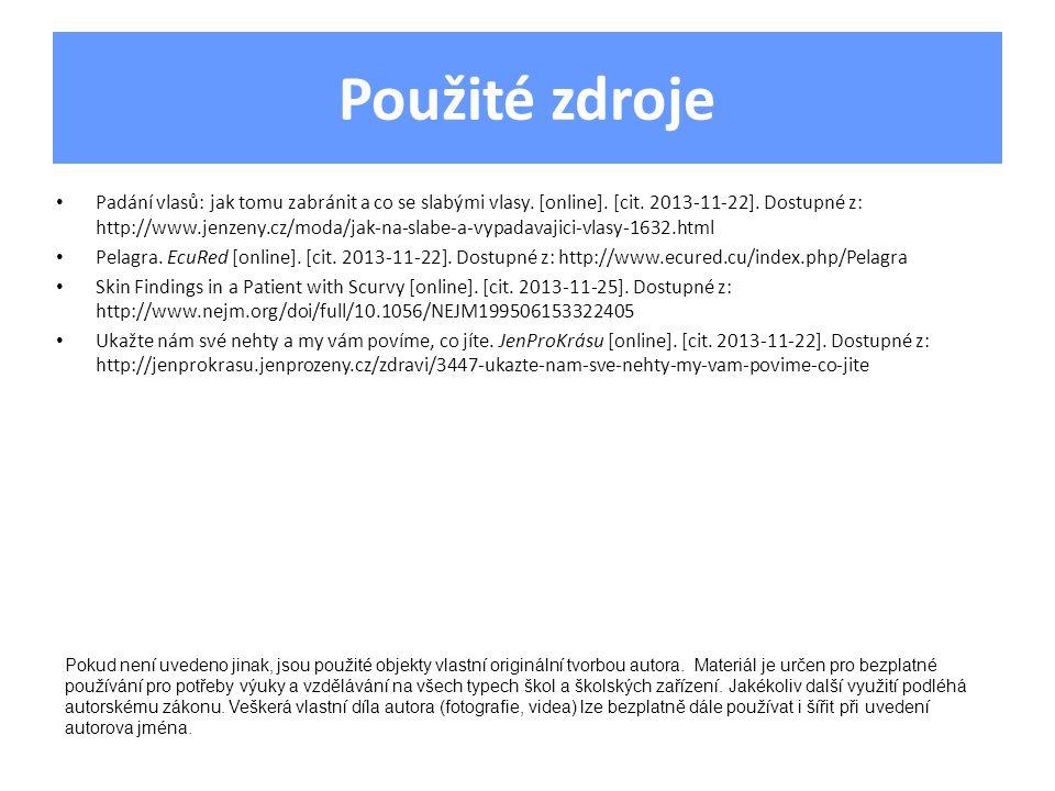 Použité zdroje Padání vlasů: jak tomu zabránit a co se slabými vlasy. [online]. [cit. 2013-11-22]. Dostupné z: http://www.jenzeny.cz/moda/jak-na-slabe