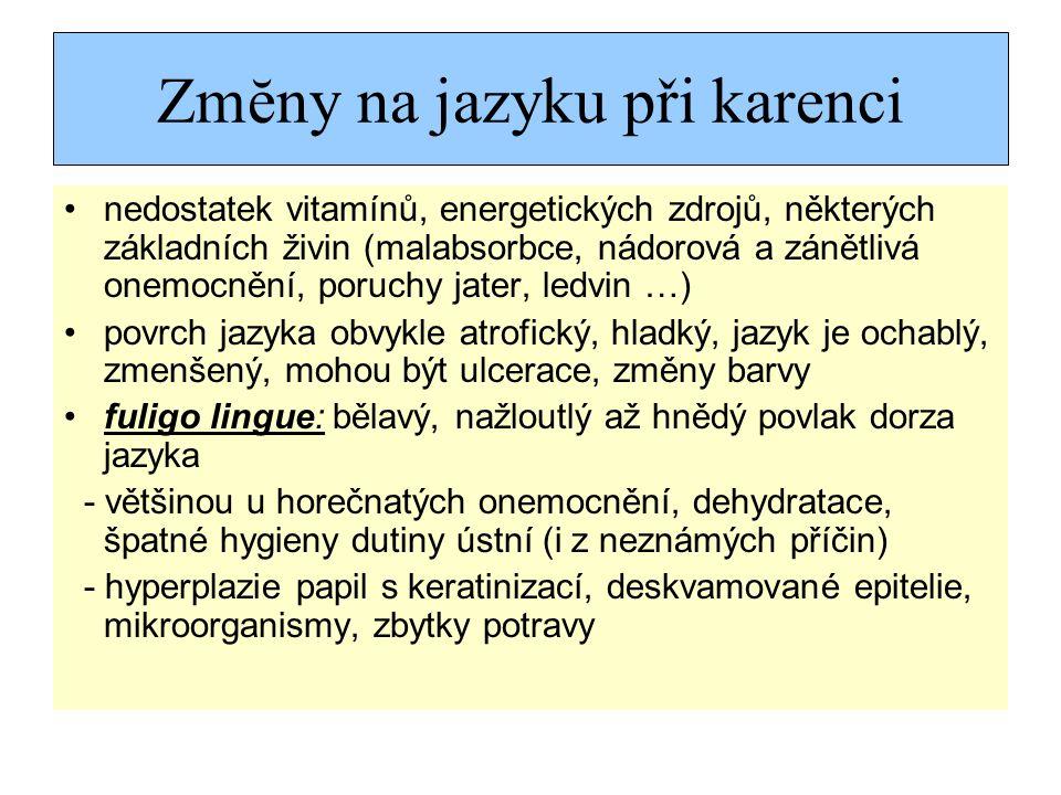Zmĕny na jazyku při karenci nedostatek vitamínů, energetických zdrojů, některých základních živin (malabsorbce, nádorová a zánětlivá onemocnění, poruchy jater, ledvin …) povrch jazyka obvykle atrofický, hladký, jazyk je ochablý, zmenšený, mohou být ulcerace, změny barvy fuligo lingue: bělavý, nažloutlý až hnědý povlak dorza jazyka - většinou u horečnatých onemocnění, dehydratace, špatné hygieny dutiny ústní (i z neznámých příčin) - hyperplazie papil s keratinizací, deskvamované epitelie, mikroorganismy, zbytky potravy