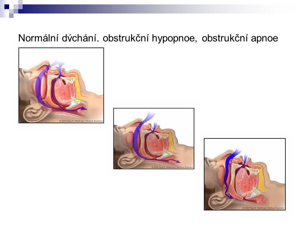 Normální dýchání, obstrukční hypopnoe, obstrukční apnoe