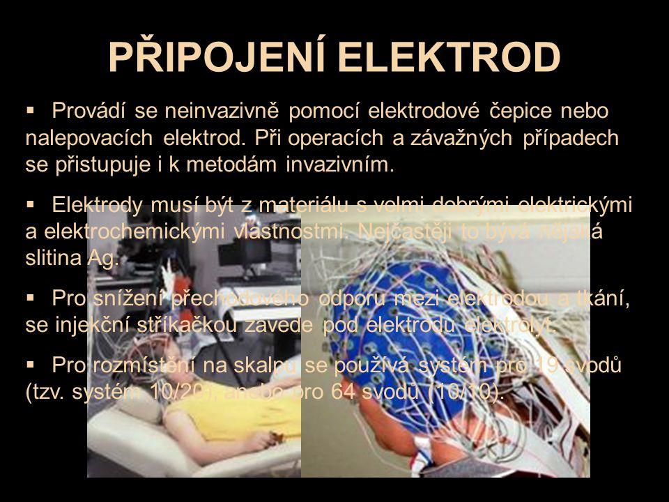 PŘIPOJENÍ ELEKTROD  Provádí se neinvazivně pomocí elektrodové čepice nebo nalepovacích elektrod. Při operacích a závažných případech se přistupuje i