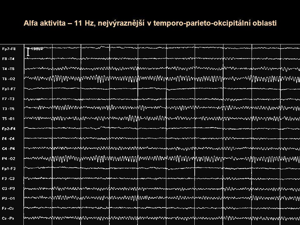 Alfa aktivita – 11 Hz, nejvýraznější v temporo-parieto-okcipitální oblasti