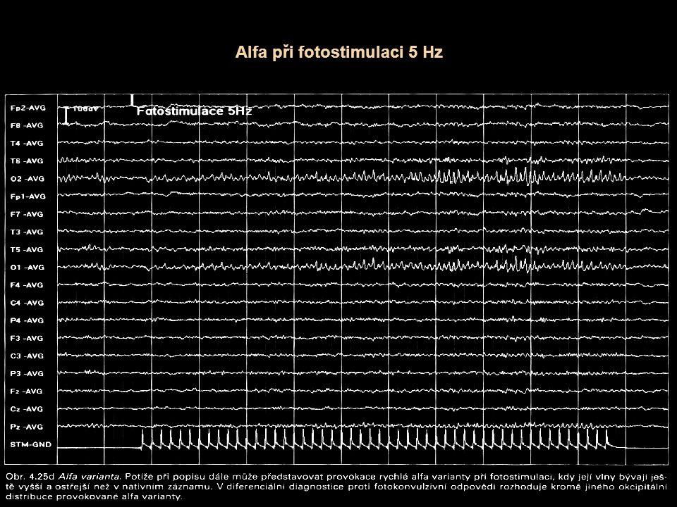 Alfa při fotostimulaci 5 Hz
