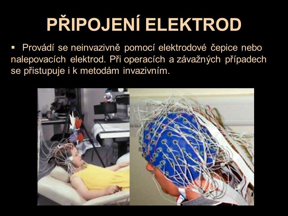 PŘIPOJENÍ ELEKTROD  Provádí se neinvazivně pomocí elektrodové čepice nebo nalepovacích elektrod.